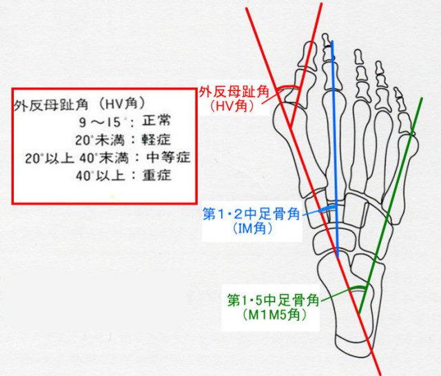 外反母趾角のイラスト